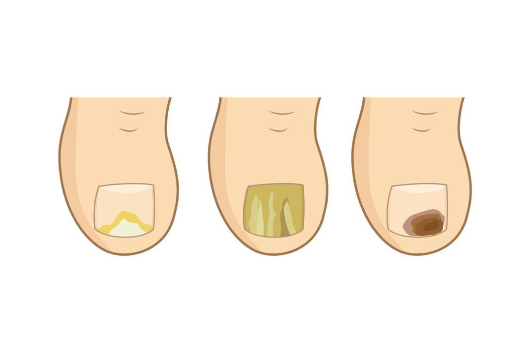 Μύκητες στα νύχια και πως να τους ...προλάβεις!